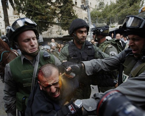 pepperspray 20 Epic Photos Which Tell Powerful Stories